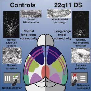 精神分裂和自闭症是什么原因引起的?可能是由于大脑连接不足