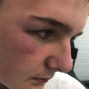 自闭症融合教育有多难?英国一个男孩惹怒同学,遭到暴力回击